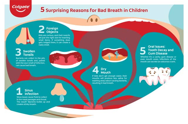 Five causes of bad breath in children