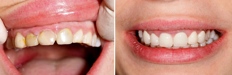 teeth before and after the installation of porcelain crowns
